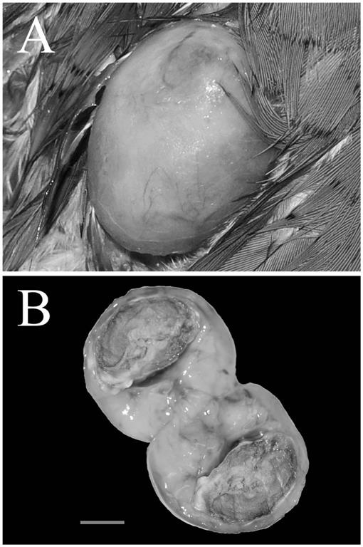 Recurrent Subcutaneous Teratoma in an Adult Red-crowned