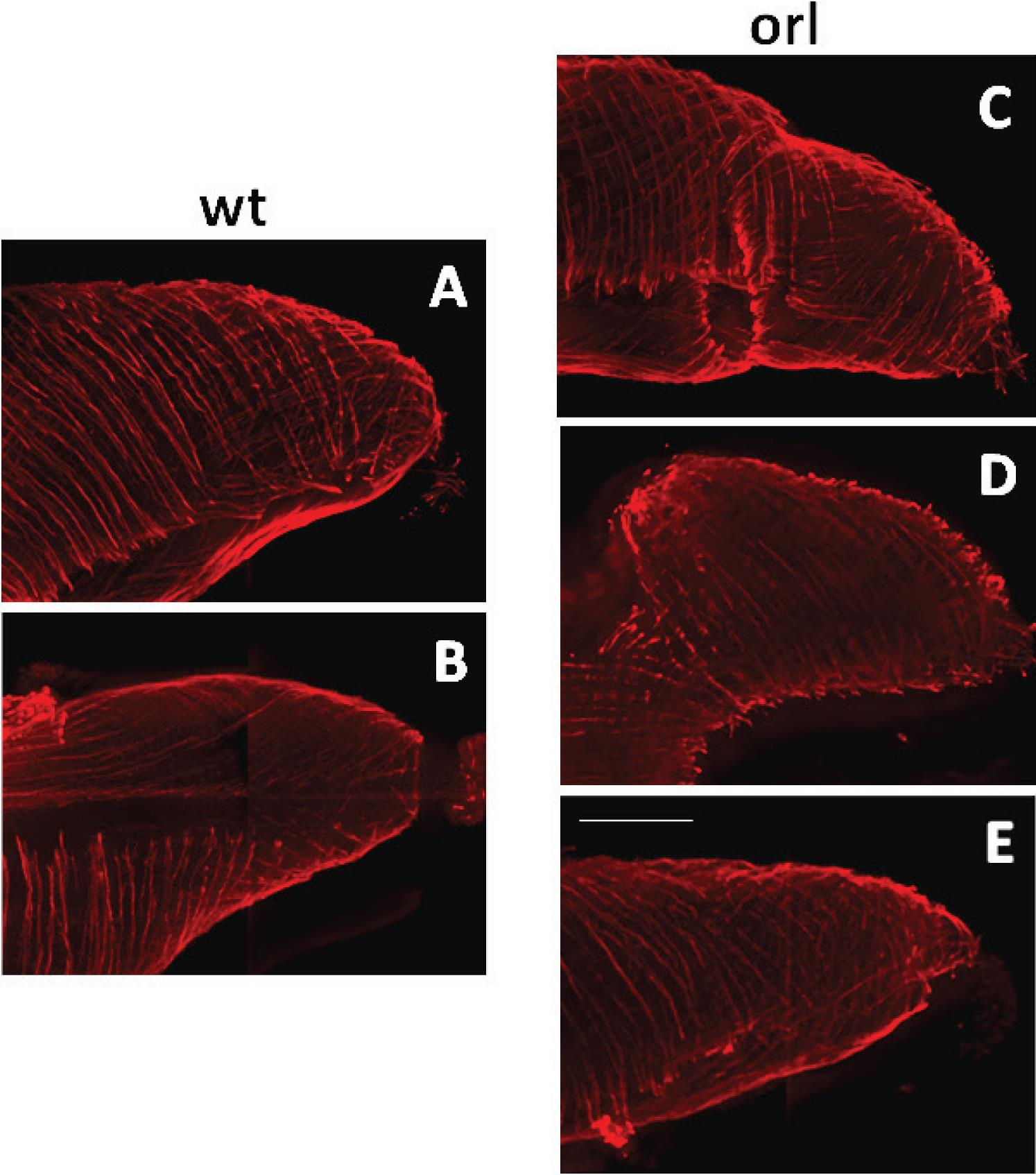 Cryptorchidism in the Orl Rat Is Associated with Muscle