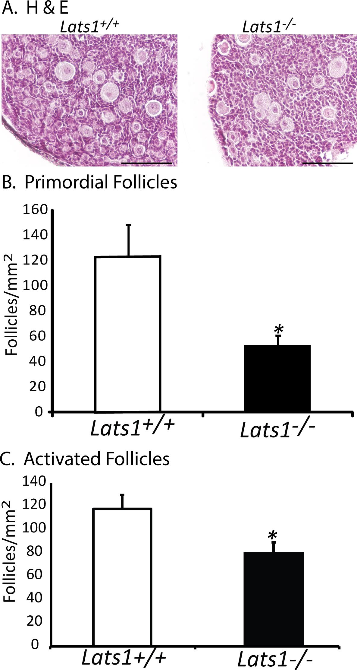 Lats1 Deletion Causes Increased Germ Cell Apoptosis and