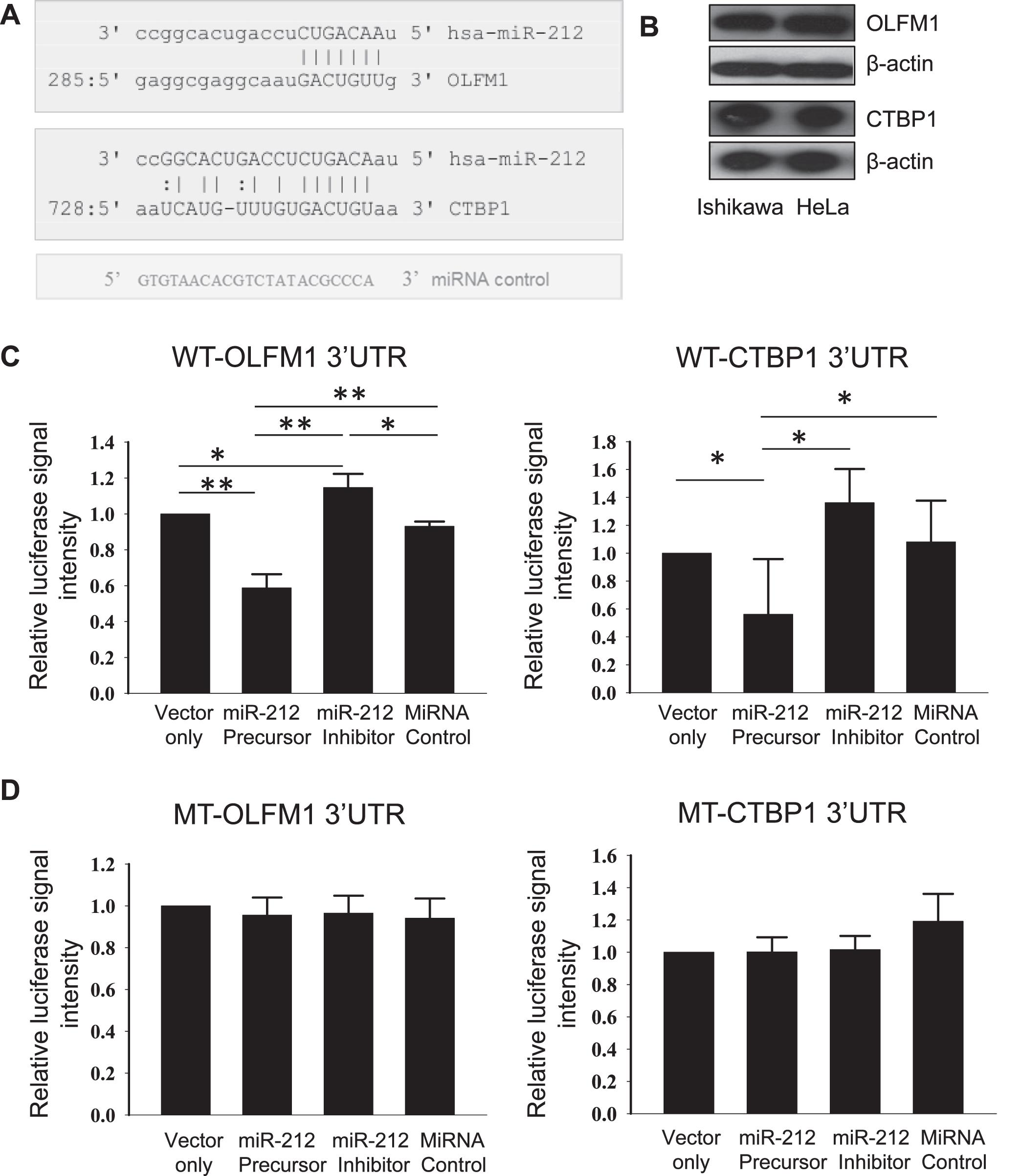 MicroRNA-212 Regulates the Expression of Olfactomedin 1 and