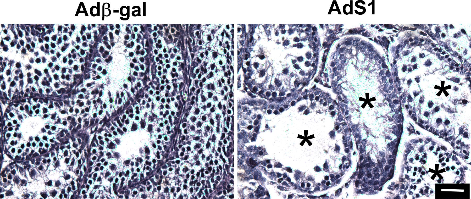 Mouse Spermatogenesis Requires Classical and Nonclassical