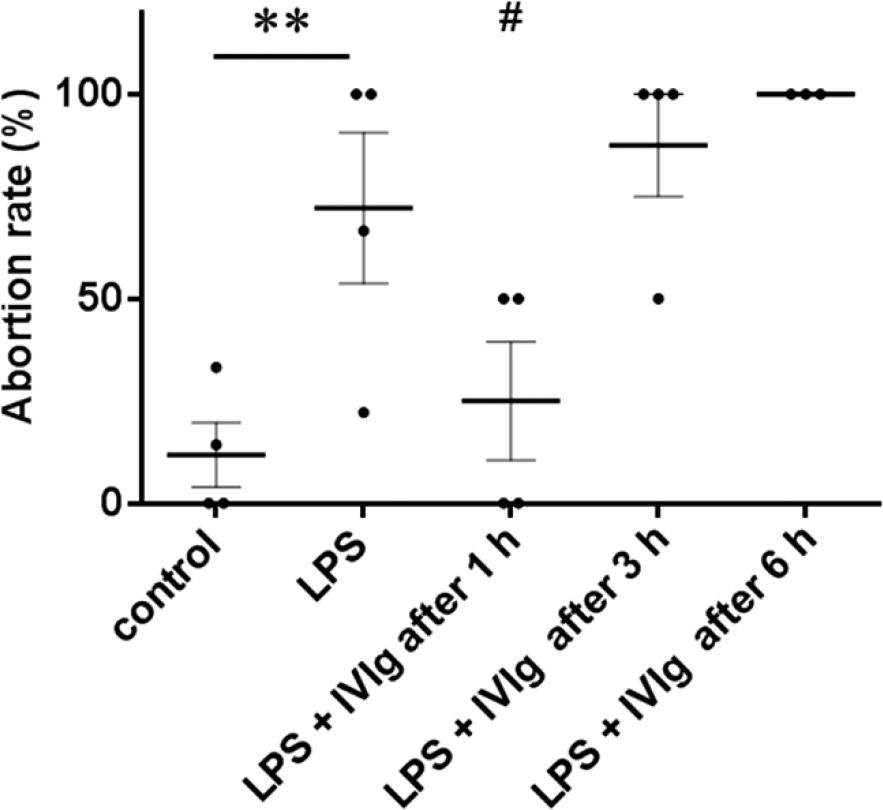 Intravenous Immunoglobulin Suppresses Abortion Relates to an