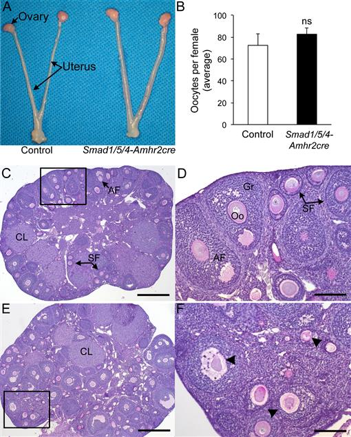SMAD Signaling Is Required for Structural Integrity of the Female