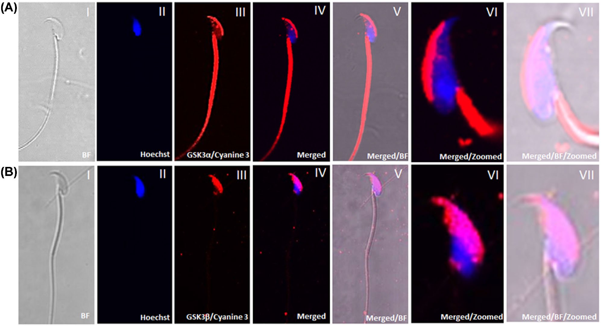 Isoform-specific requirement for GSK3α in sperm for male