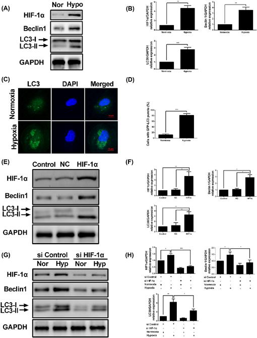 Autophagy contributes to hypoxia-induced epithelial to