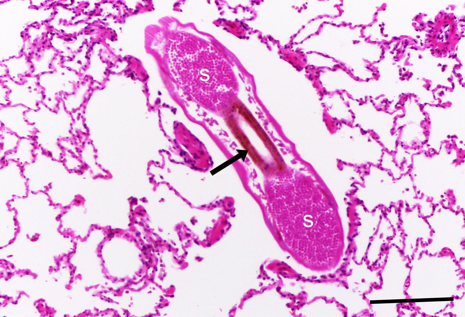 PULMONARY LESIONS CAUSED BY THE LUNGWORM (DIDELPHOSTRONGYLUS